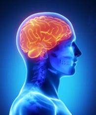 Neurocirugía producto